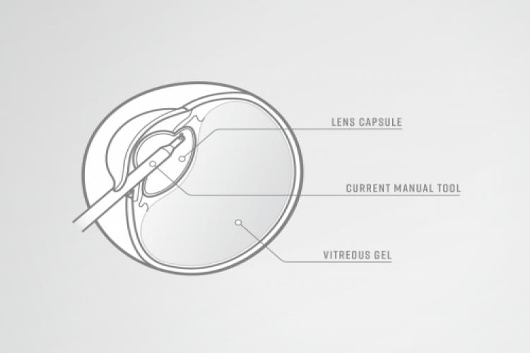 عضو جدید 15 میکرونی چشم
